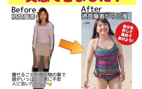 【悲報】摂食障害の美人女さん、食欲を取り戻した結果デブになってしまうw.w